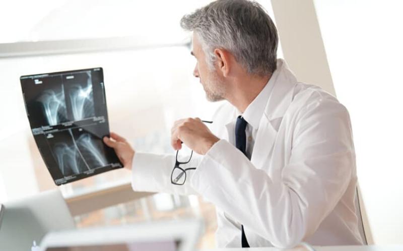 Chụp X quang là gì?