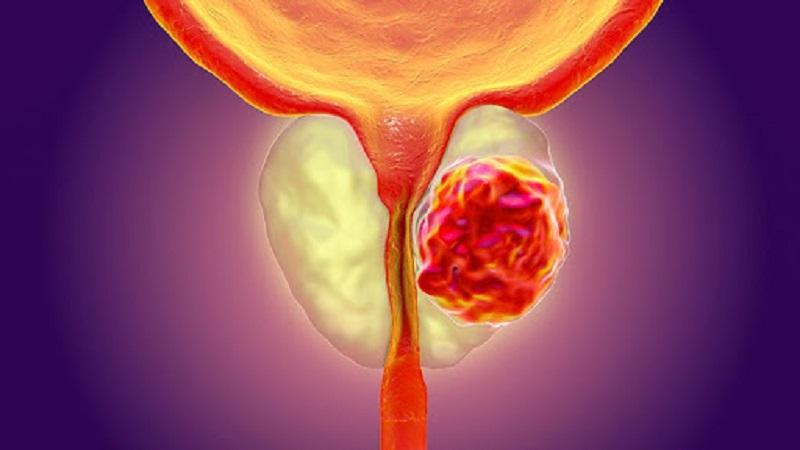 Xét nghiệm sinh thiết ung thư tiền liệt tuyến