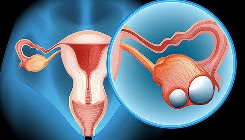 Vì sao cần chấn đoán sớm ung thư buồng trứng?