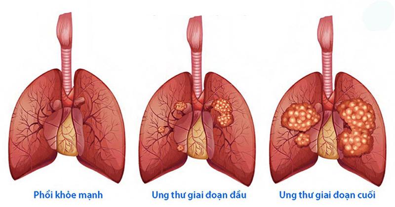 Vì sao nên tầm soát ung thư phổi?